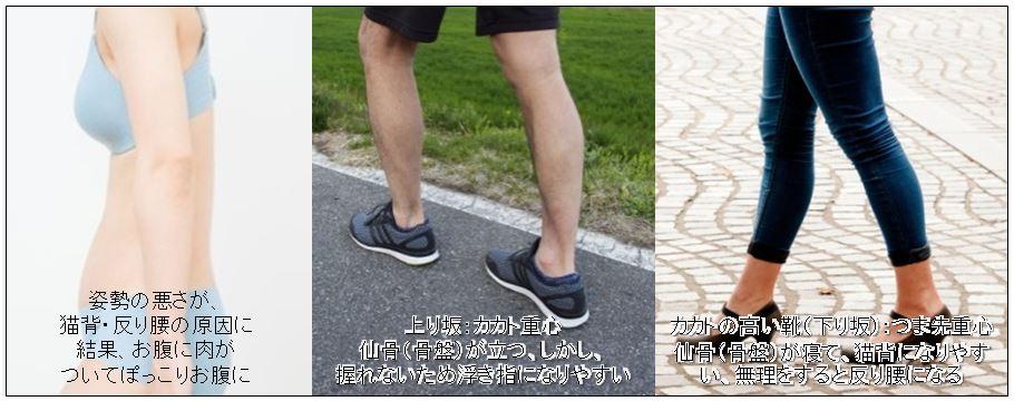 仙骨(骨盤)の角度を修正して、足指力をつけ、足裏アーチを形成すること