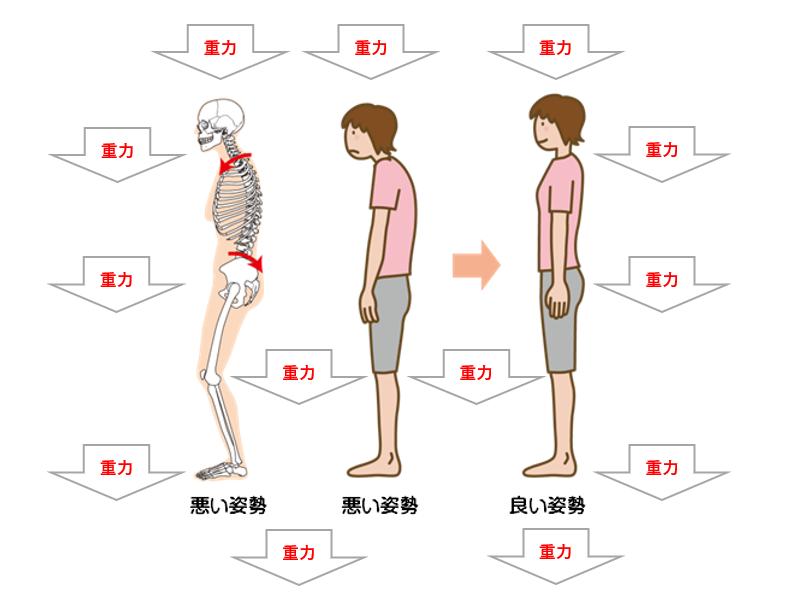 重力における悪い姿勢比較(抗重力筋)