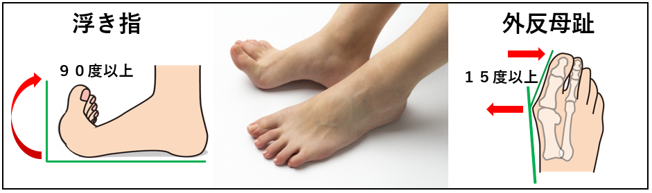 主な足のトラブルである浮き指・外反母趾とは