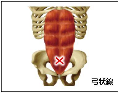 弓状線(きゅうじょうせん)とは  へそ下5cmほどの位置にある腹横筋と腹直筋が交差し腹直筋が腹横筋の下に潜り込むポケット